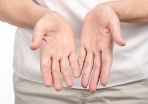 Apotheco Psoriasis - Person showing hands with psoriasis