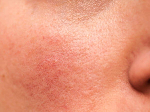 Apotheco rosacea - close up of person's cheek with rosacea