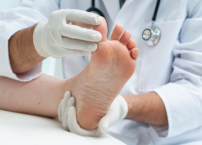 Apotheco Fungal Infections - Doctor dermatologist examines the foot