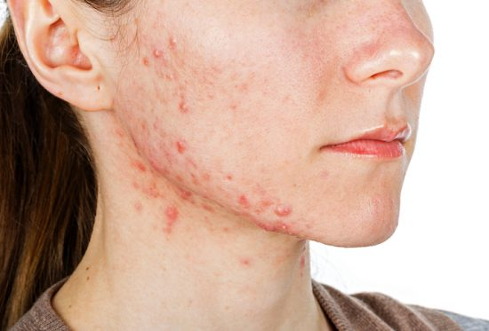 What triggers Acne? Our acne pharmacy has solutions to pimples like these